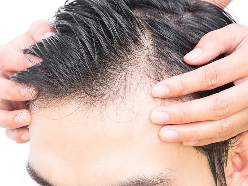 Le complément capillaire pour avoir des cheveux plus denses